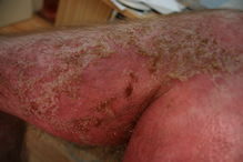 Pictures of shingles on the penis